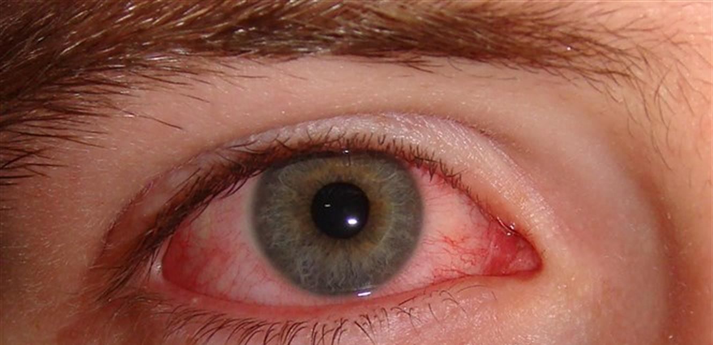 احمرار العين وتهيجها